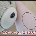 腕の赤いブツブツ画像