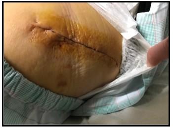 手術跡1週間の写真