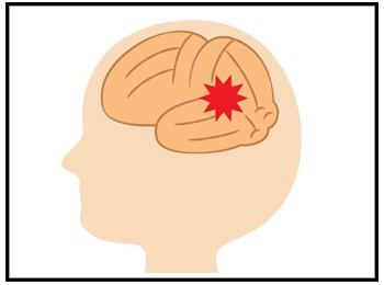 脳の炎症の画像